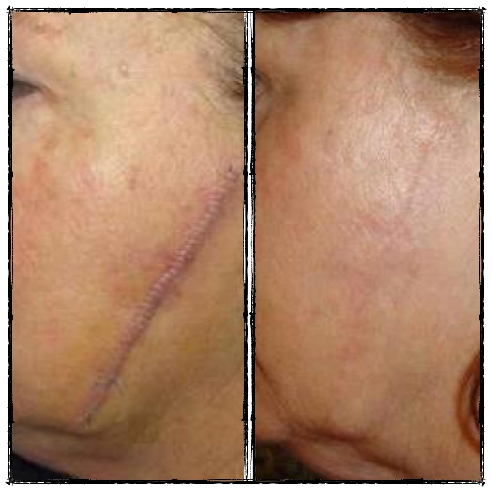 Nerium Firm Images Just in The Nerium Firm Body